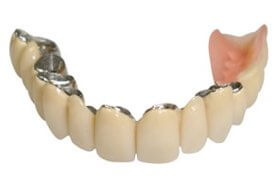 telescopic bridge denture
